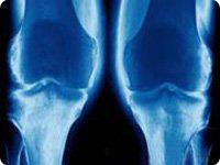 Х-образное искривление ног при деформирующем остеоартрозе коленных суставов